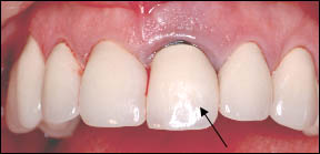 Cracked Central Incisor Tooth